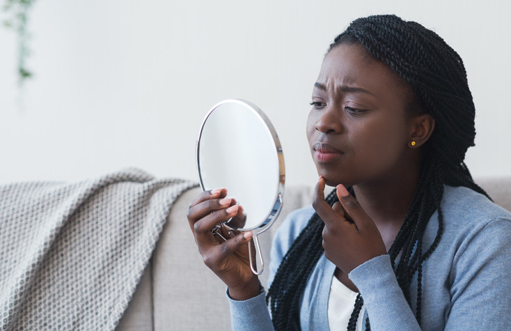 Acne: Considerations for darker skin