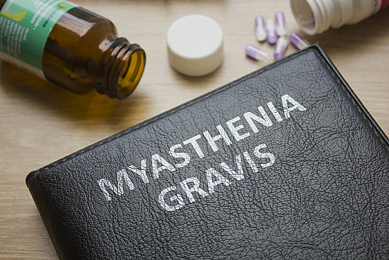 How is treatment for myasthenia gravis evolving? featured image