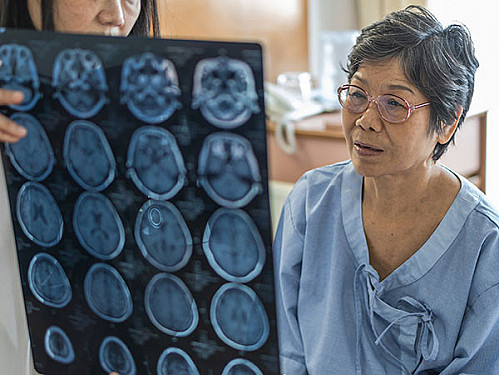 A new Alzheimer's drug has been approved. But should you take it? featured image