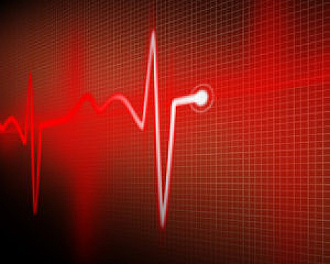 Increase in resting heart rate is a signal worth watching featured image
