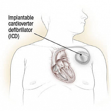 Living with an implantable defibrillator featured image