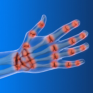 Harvard Health AdWatch: An arthritis ad in 4 parts featured image