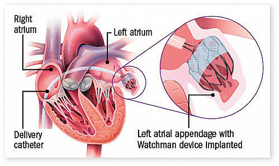 Stroke prevention in atrial fibrillation: Beyond anti-clotting drugs featured image