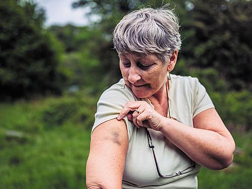 Aspirin and bruising featured image