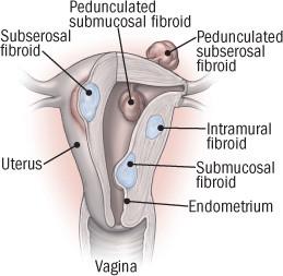 types-of-fibroids