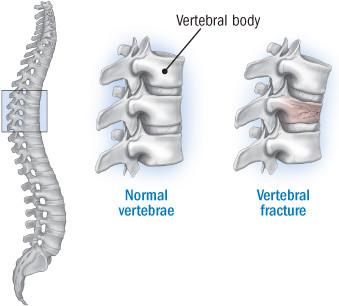 anatomy-of-a-vertebral-fracture