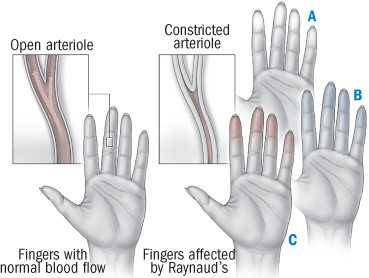 Illustration showing the effect of Reynaud's phenomenon on hands