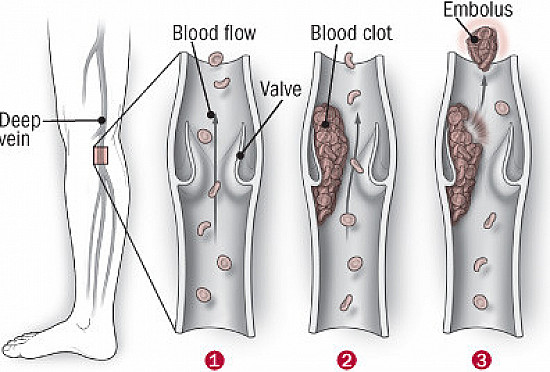 On the alert for deep-vein blood clots featured image