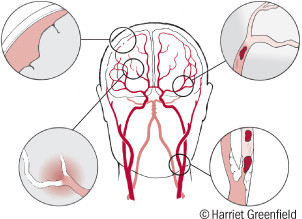 illustration of what happens in the brain during two types of stroke