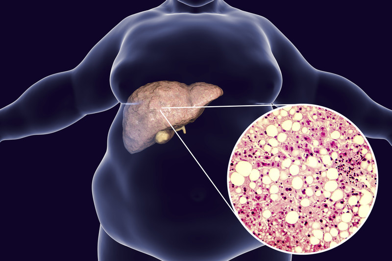 When the Liver Gets Fatty - Harvard Health Publishing - Harvard Health