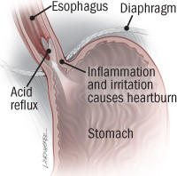 illustration of esophagus and stomach showing inflammation from GERD