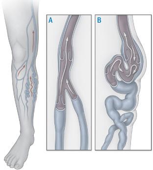 illustration of normal leg vein and varicose vein