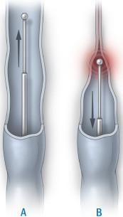 illustration of endovenous treatment using laser