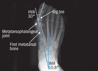 x-ray of a foot with a bunion