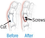illustration of repair to moderate bunion