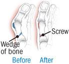 illustration of repair to severe bunion
