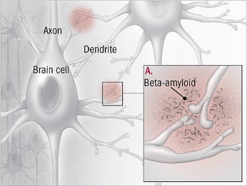 Diagnosing Alzheimer's disease featured image