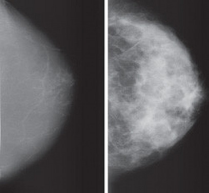 The breast density-breast cancer connection featured image