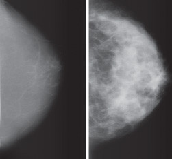 images showing breasts that are mostly fat (left) and mostly dense tissue (right)