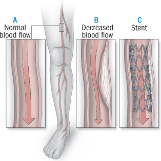 illustration of normal leg veins and veins with peripheral artery disease