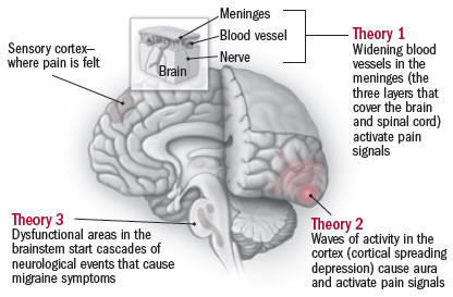 The mystery of migraines