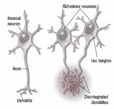 New hope for Alzheimer's featured image