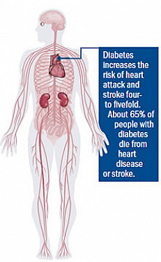 Bypass best for people with diabetes featured image