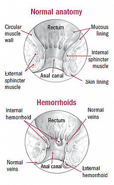 Self-help steps to get through hemorrhoid flare-ups featured image