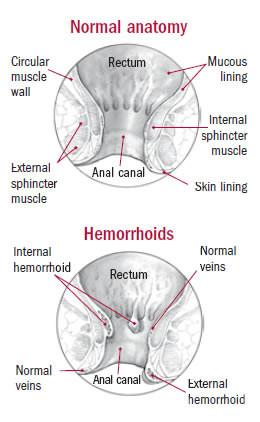 Normal anatomy & Hemorrhoids
