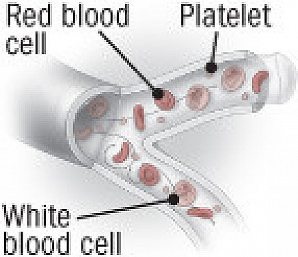 By the way, doctor: Should I worry about giant platelets? featured image
