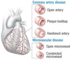 causes-of-ischemic-heart-disease