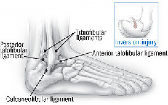 Recovering from an ankle sprain featured image