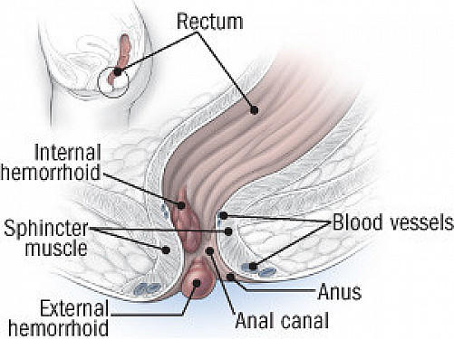 What to do about hemorrhoids featured image