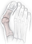 illustration of foot with bunion