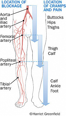 Peripheral artery disease: Leg pain and much more featured image
