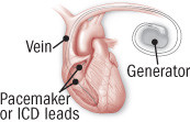 illustration of heart showing leads from generator
