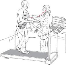 illustration of preparation for exercise stress test