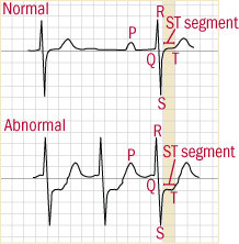 graph of electrocardiogram showing depressed ST segment