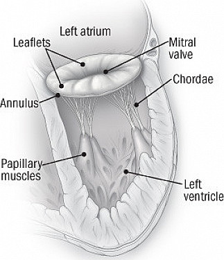 When and how to treat a leaky mitral valve featured image