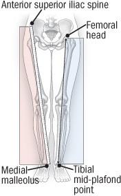illustration of ways to measure leg length