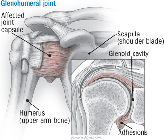 illustration of the shoulder showing the affected joint capsule