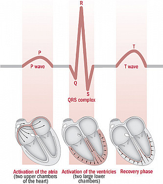 Understanding the ECG: Reading the waves featured image