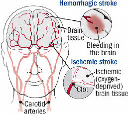 11 ways to prevent stroke featured image