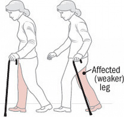 Ask the doctor: How do I use a cane? featured image