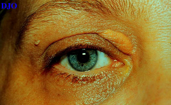Cholesterol deposits in the skin featured image