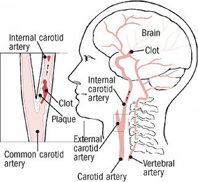 The crucial, controversial carotid artery Part I: The artery in health and disease featured image
