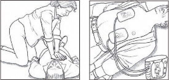 Pause in CPR before shock reduces survival featured image