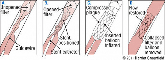 The crucial, controversial carotid artery Part II: Treatment featured image