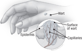 illustration of skin with closeup of wart