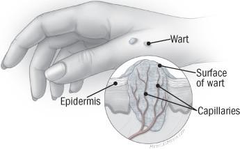 warts on hands not going away hpv genital verruga